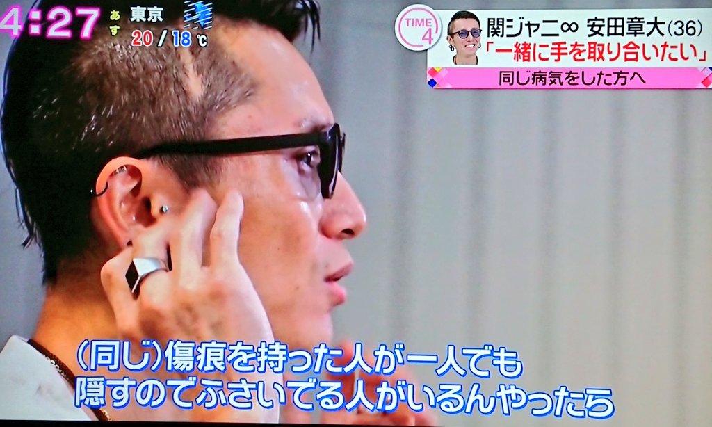 ジャニ 章 病気 安田 関 大