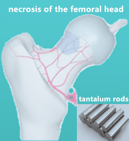 #CTOD [Study Protocol] Porous tantalum rods improve the hip joint function of patients with avascular necrosis of the femoral head after femoral neck fracture surgery: study protocol of a randomized controlled trial #fracture #hipjoint #necrosis #material  https://t.co/aJBK1h7Ce3 https://t.co/89IVVO9CHA