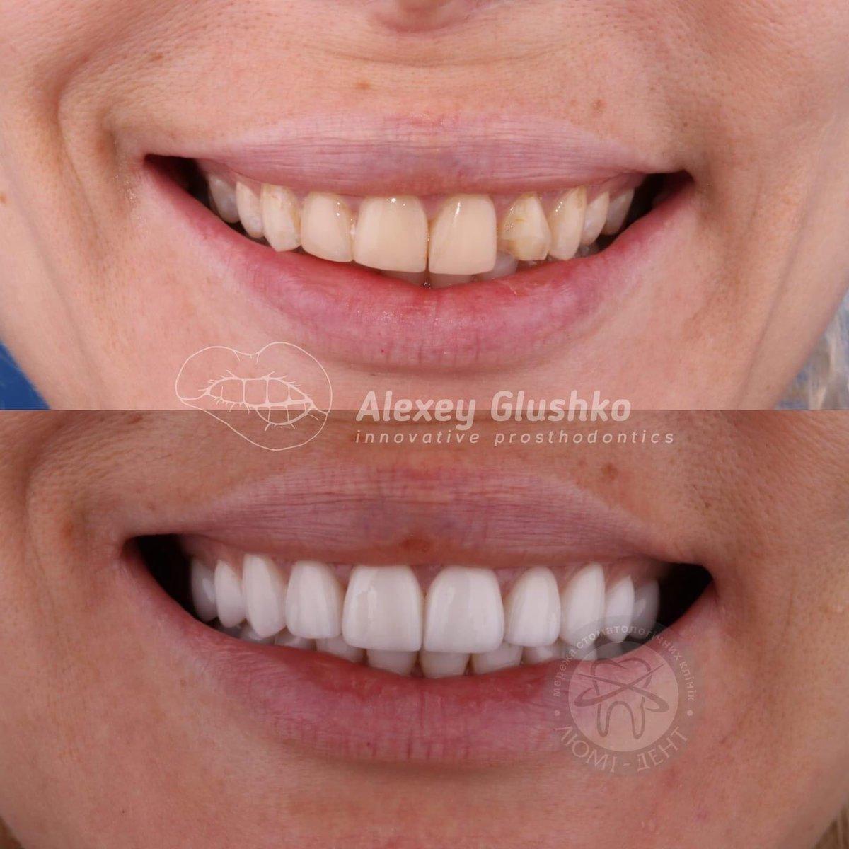 STA-анестезия: новые технологии в современной стоматологии https://t.co/0zuldbgfyN https://t.co/3uMPLOhXuU