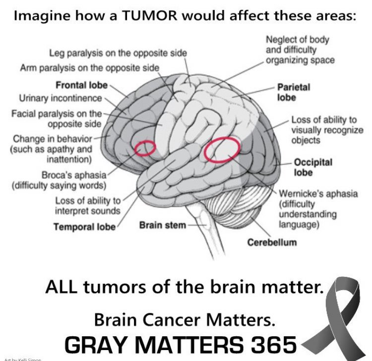 What the world needs now is a CURE. Imagine if a tumor... #hope #findacure #cancer #btsm #brain #fighter #nevergiveup #cure #change #imagine #graymatter https://t.co/RZowsxYhr3