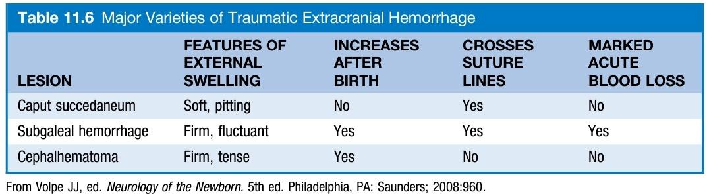 Major Varieties of Traumatic Extracranial Hemorrhage  📖 Reference: Pediatric Secrets 7th edition #Pediatric #newborn #Neonatology https://t.co/Puj953wabh