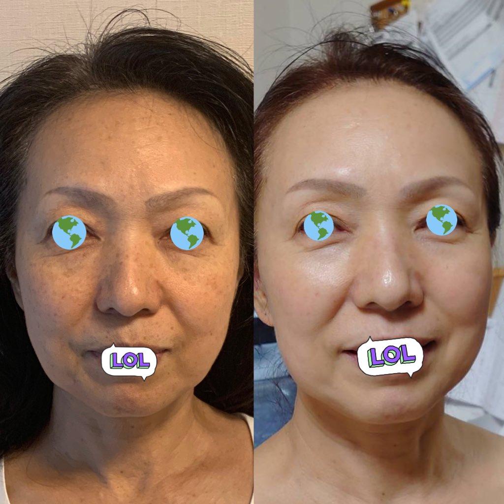 高いスキンケアからコスパいいジオーディナリーに変え、私と共にピコレーザーを2、3週に1度計8回受けた母のビフォアフがこちら。(ノーマルカメラすっぴん)掲載許可済み🙆♀️気にしてた鼻の上と唇上のシミもなくなりトーンアップしてる。スキンケア分の投資を医療の可能性にかけてよかったと言われた🥰