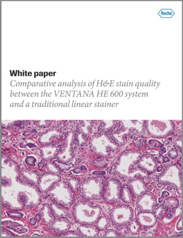Need a whitepaper on Hematoxylin and Eosin quality? Look no further than the one sponsored by Roche!  H&E Quality. See the Difference.  https://t.co/uPnVdXyp2b  #HandE #HandEstainquality #VENTANAHE600system #traditionallinearstainer #Roche #Ventana #HematoxylinandEosinStaining https://t.co/CCW7sbpP65