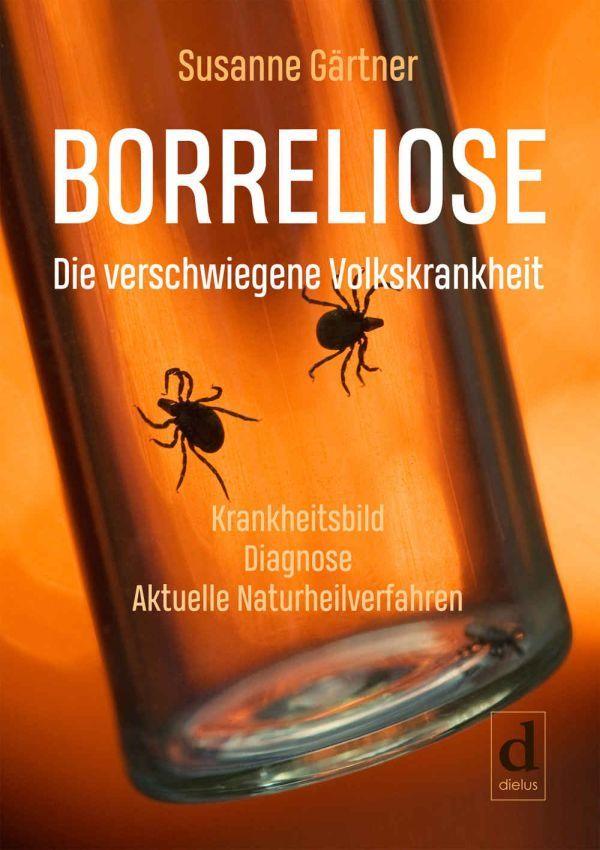 """➽ Borreliose ist keine harmlose Erkrankung  https://t.co/m6afVdUcQW   ➽ Buchvorstellung: """"Borreliose: Die verschwiegene Volkskrankheit"""". Ein #Sachbuch von Susanne Gärtner  #wissen #medizin #gesundheit #ratgeber #werbung #retweet #rt https://t.co/6lBlk7gfee"""
