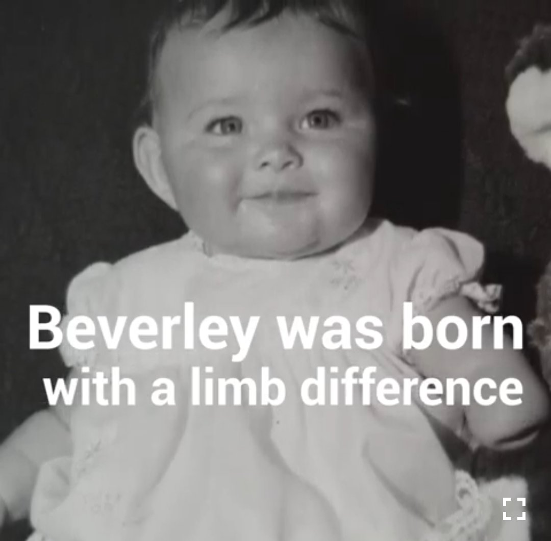 Yes I was born #limbdifferent, but even if a new, groundbreaking procedure to 'grow' an arm was invented I wouldn't take advantage of it.  My difference is what makes me ME. Resilient & empathetic.  #disability #disabilitytwitter #ThursdayThoughts #limbdifference @openbionics https://t.co/bu9tIx76Xo https://t.co/tGjffGQ3y6