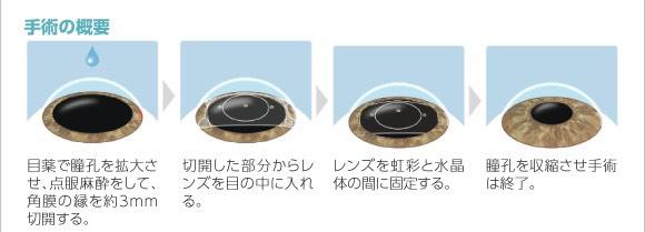 ICLのメリット①眼鏡の煩わしさやコンタクトのお手入れから解放される。②万一、度数が合わなくなった場合は、レンズを取り出して元に戻せる。③レーシック治療適応外になる強度近視の方も対象になる。ご興味のある方はお声掛け下さい#埼玉 #朝霞 #眼科 #大野眼科クリニック
