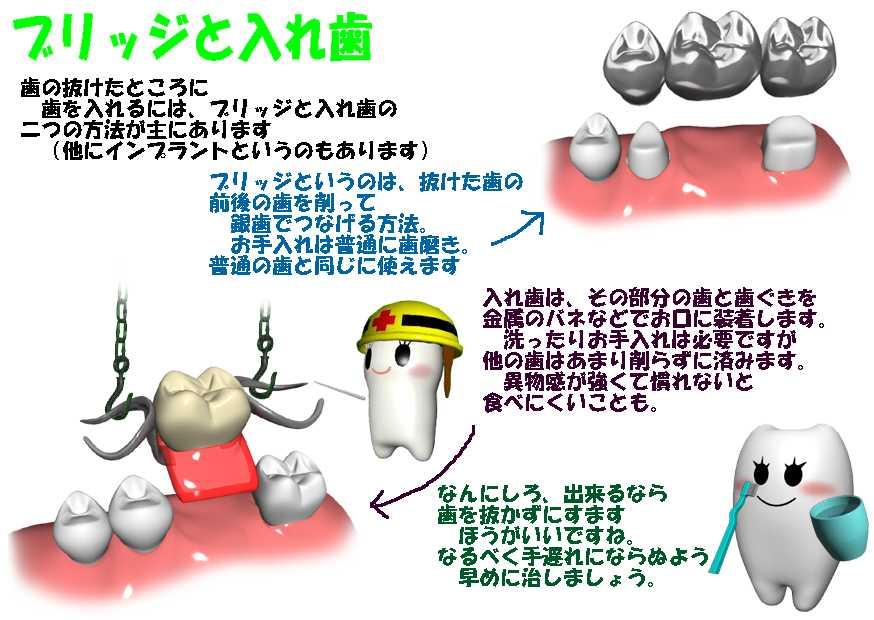 @emikokamo 前後の歯を削ってつなげるブリッジにするか、一本だけの義歯(入れ歯)を作るか、インプラントにするか(高額)かどれかの場合がだいたいですね(*´ω`*)抜いたままにしておくとその後ろの歯が前側に倒れてきて歯並びが狂うことが多いです