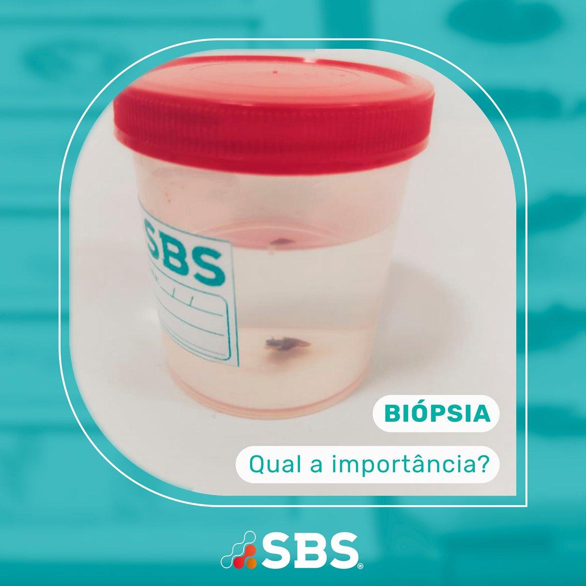Biópsia é a retirada de um pequeno fragmento de tecido para diagnóstico histopatológico. Pode ser realizada de lesões de pele, nódulos, vísceras e ossos. Consiste uma importância ferramenta para avaliar possíveis neoplasias e seu prognóstico.  #histopatologia #biopsia #neoplasia https://t.co/YMKEm0IkRb