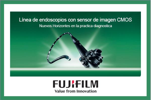 Las innovaciones pioneras como la tecnología CMOS, la rigidez gradual y la endoscopia de doble balón hacen que la endoscopia sea aún más segura y amigable. Para más información, visita https://t.co/rIpVWsTNDg   #endoscopia #endoscopiafujifilm #tecnologiafujifilm #endoscopiaLA https://t.co/eslapxydFu