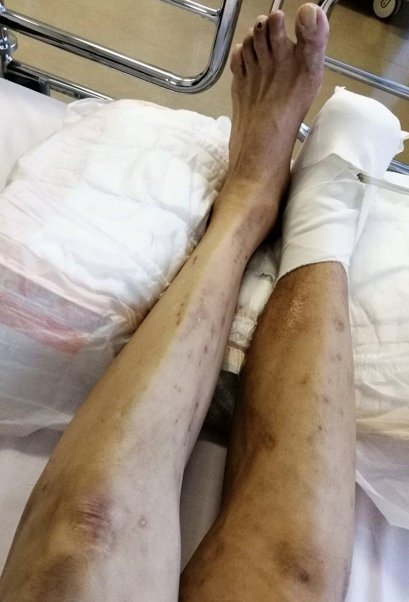 右足の浮腫が何ヶ月ぶりにしぼんできた。でた2日でもvac療法で切断面に霜みたいのが出来てきています。これを増やすための陰圧維持管理装置です。#vac療法 #バック療法 #真空パック #肉芽 #にくげ #病院 #入院 #骨髄炎 #切断 #切除 #vac #局所陰圧閉鎖療法  #治癒 #促進 #治癒促進 #陰圧維持管理装置 https://t.co/CCSvf3uHcX