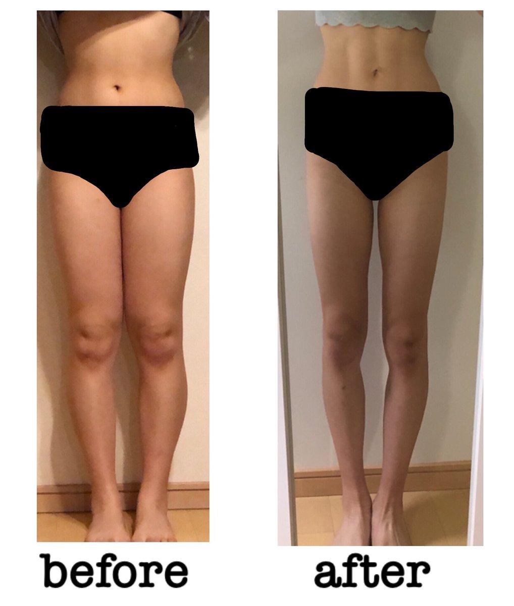 ダイエットのビフォーアフターです!こうみると顔の形も全然違う、、、。約15キロ痩せて服を選ぶことやメイクをすることがもっと楽しくなったし自分に自信が持てるようになった!内腿痩せ、反り腰、O脚、、、、まだまだ改善点は沢山あるから自分磨き頑張りたい!!