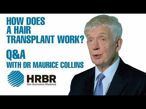 How does a hair transplant work? Find out by watching this video: https://t.co/NWPHeaIjQC #hairloss #hairrestorations #menshair https://t.co/MUlpxjltCz