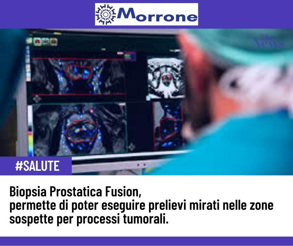❎Il carcinoma prostatico è il primo tumore per incidenza nel maschio.  Il responso finale sulla presenza o meno di un #carcinoma prostatico è affidato alla biopsia prostatica:la #Biopsia Fusion  🌐 https://t.co/YygwydcTyq  #prostata #prevenzione #noalcancro #caserta https://t.co/uiBsAevybk