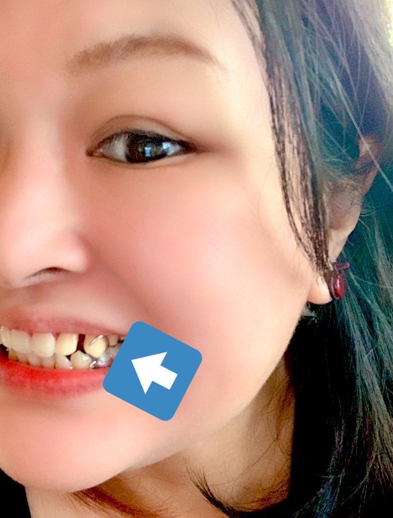 【おしらせ】終活には早過ぎると言われるかもですが老後に大変にならぬ様、噛み合わせ改善(疼痛緩和の効果期待)&歯科治療&ブリッジやインプラント治療は断念して義歯も完成しました!義歯は所謂部分入れ歯です。この年齢だととても悩みましたが、入れ歯女子宣言しとくわ!