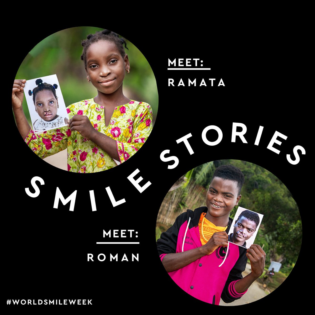 S M I L E   S T O R I E S — in honor of #WorldSmileDay this Friday we're taking the time to celebrate all week long. To shine the light on healthy & beautiful smiles around the world. To create the space where we all feel welcome to share our smile story.  @operationsmile