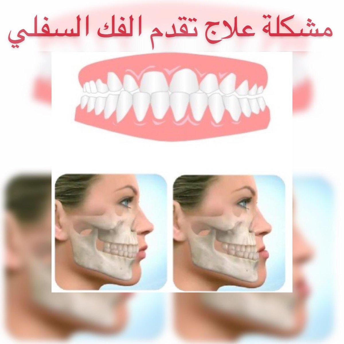 Dr Anas Alomari On Twitter علاج تقدم الفك السفلي كل يوم معلومة تهمك حول تقويم الأسنان تابعنا على Https T Co Lxn3xjeuon