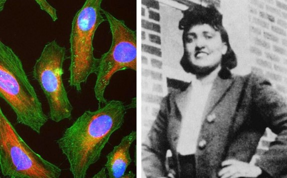 Thank you to everyone who attended our talk on the history and ethics of HeLa cells. Here are some further reading links #HeLa100 https://t.co/BeU0vJgUM2