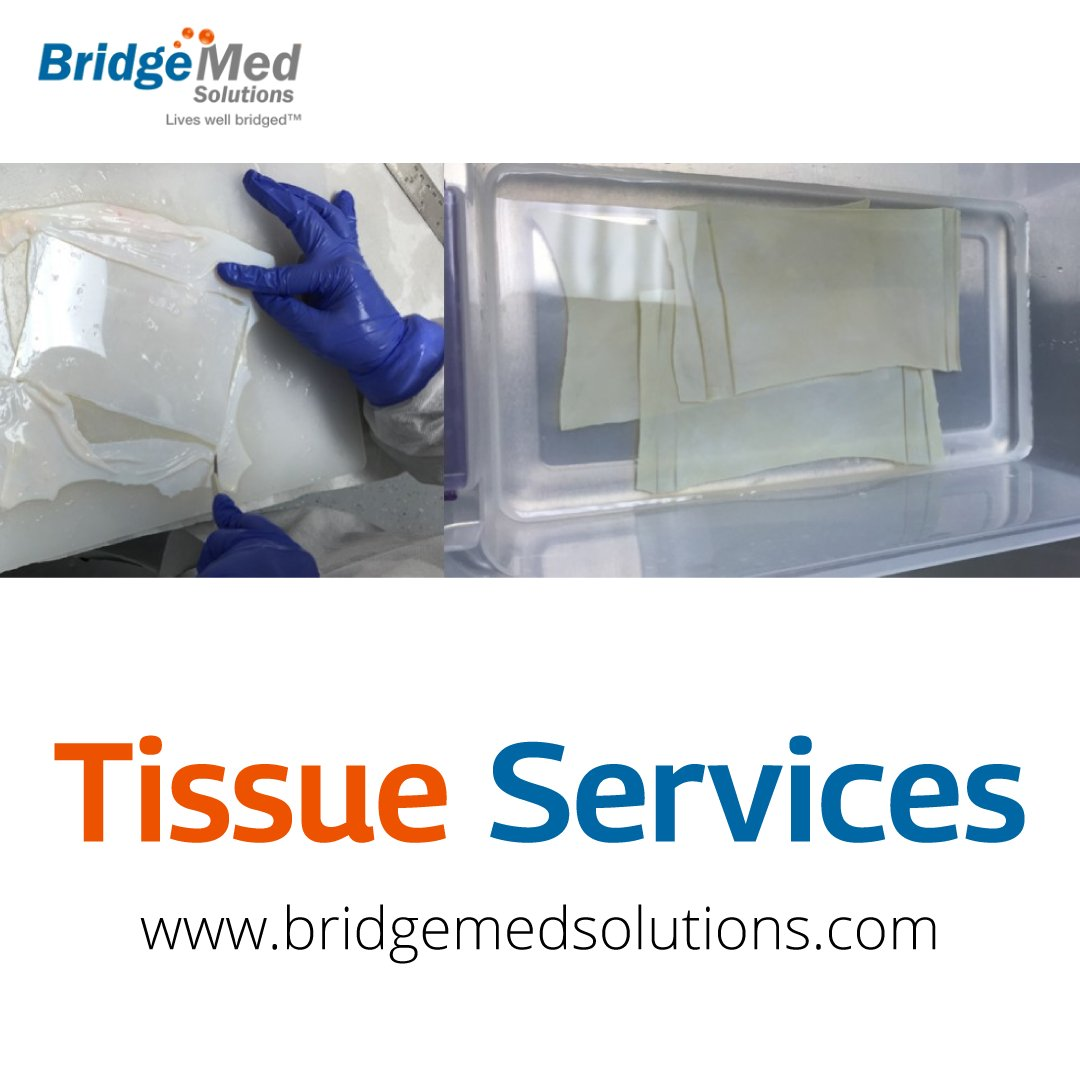 @BridgemedI Quality Assurance procedures ensure the safety of tissue by performing multiple record reviews prior to releasing any grafts for transplantation.  https://t.co/rqLa26m9De  #heart #heartdisease #doctor #medical #tavr #hearthealth #valve https://t.co/H5FRnE1FhO