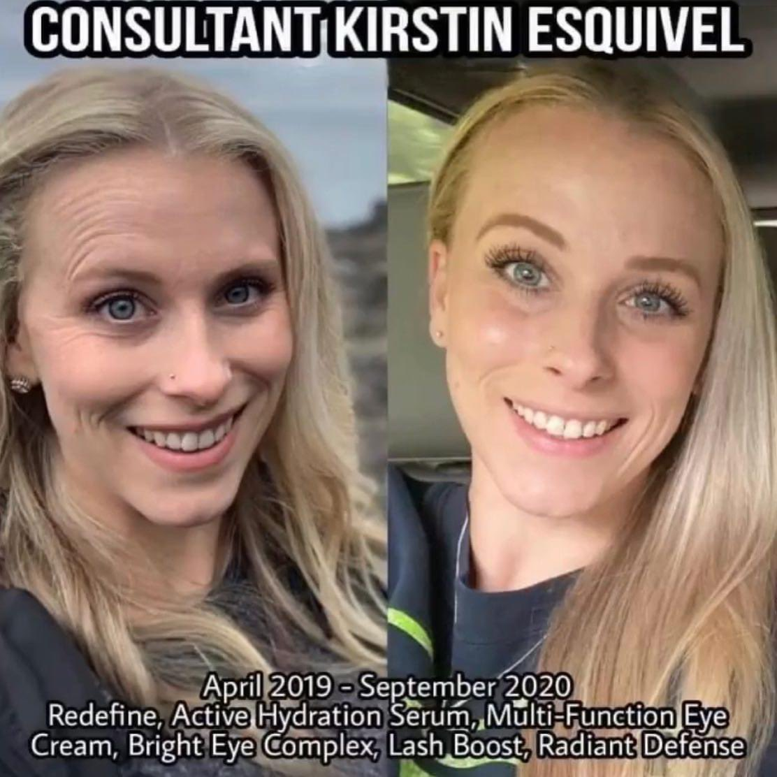 🌟Seriously...This is one of the reasons why I use and sell Rodan & Fields 🌟 look at the transformation Kirstin has gone through with her skin  looks Firmer,brighter, hydrated 💦and healthier 🙌🏻 I am here to help, no pressure 🥰 #feelbetter #lookbetter  #healthyskin #firmerskin https://t.co/d4r7RksRKQ