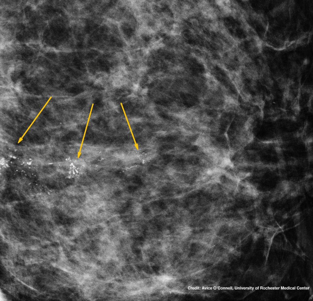 Did you know technology developed for Hubble has helped with breast cancer detection and treatment? On #NationalMammographyDay, learn about how this tech helps doctors identify microcalcifications and make biopsies less painful: go.nasa.gov/34Y9WS0 & go.nasa.gov/3o8rBPY