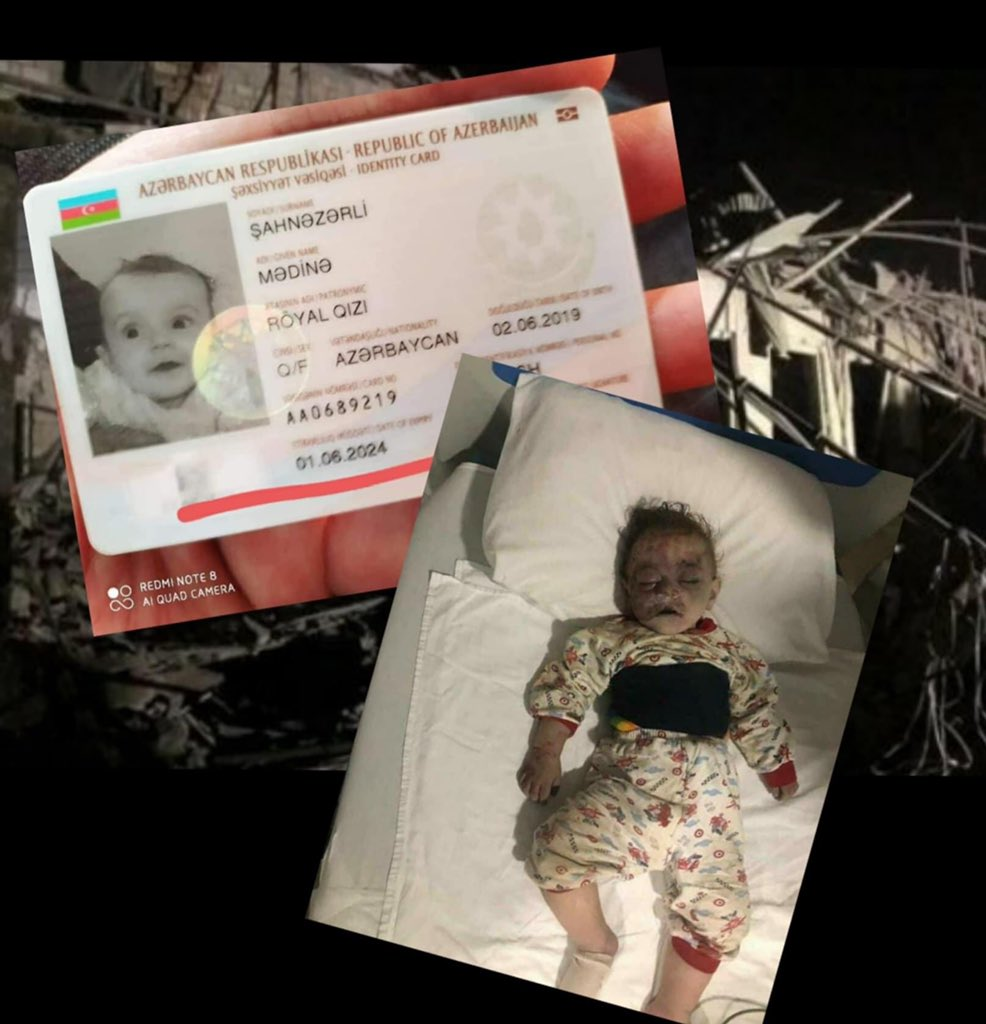 A 16-month-old victim of the Ganja terror that took place tonight. Along with this baby, his father was also killed. #StopArmenianAggression #ArmeniaKillsCivilians #KarabakhisAzerbaijan #StopArmenianOccupation #DontBelieveArmenia #GanjaCity