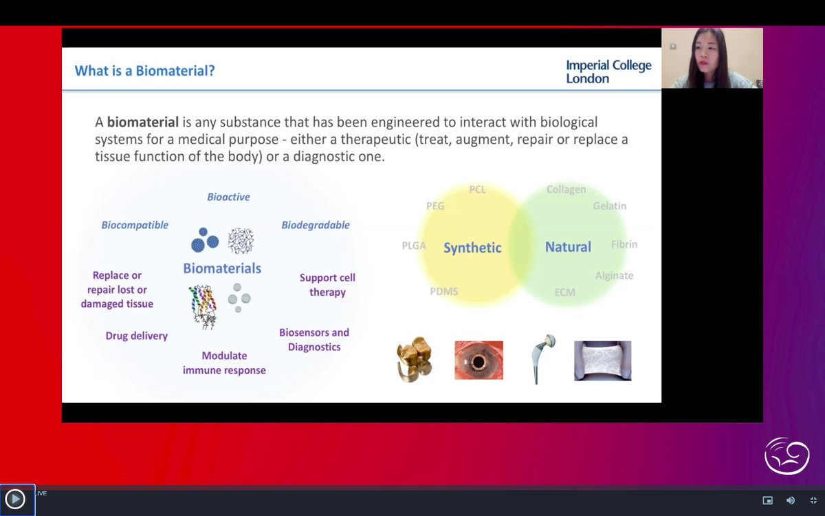 What is Biomaterial? Maxine Chan (@ChanMaxine) explains at her talk on Tissue engineering and female infertility: focus on Asherman's. #ISUOG2020 https://t.co/IP8s0wM7ml