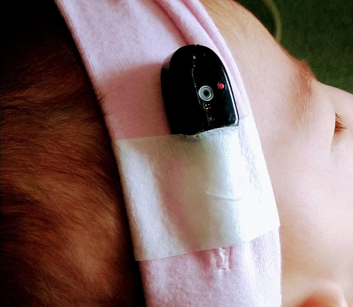 補聴器 骨 伝導