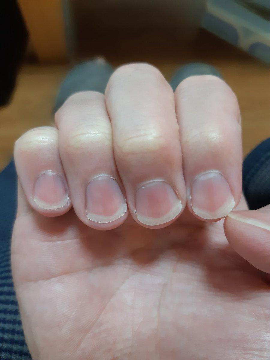 爪に気づかって丸1年が経ちました随分よくなったと思います刺激をくれた皆さんのおかげですこれからも続けていきます💪