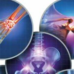 Image for the Tweet beginning: Joint pain and stiffness can