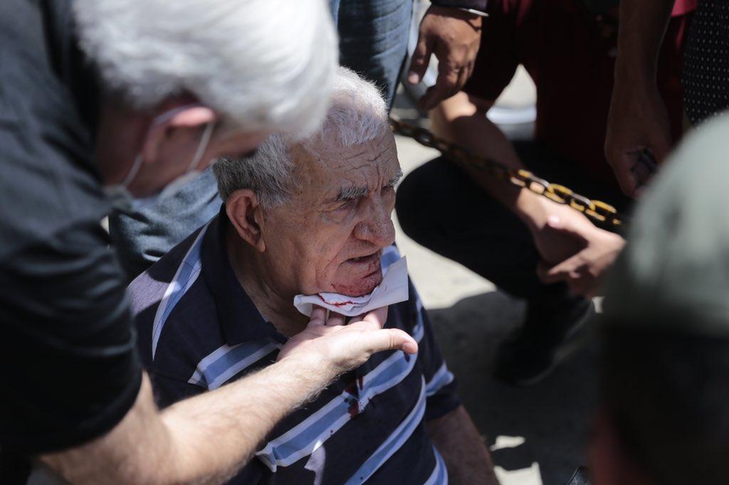 Este señor se desmayó en la cola del Saime Los Ruices, ¿me puedes ayudar difundiendo para que algún familiar se entere? El señor es ciego y está desorientado https://t.co/tpxVU55o6K
