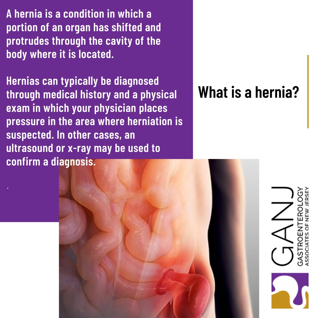 A #hernia is a condition in which a portion of an organ has shifted and protrudes through the cavity of the body where it is located. #GANJ #gastroenterology #gastroenterologia #health #gi #endoscopy #colonoscopy https://t.co/TuNC79yFkz https://t.co/EuGth7AZjV
