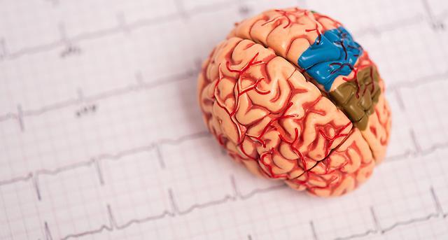 #Studie #Vorhofflimmern Vorhofflimmern: Katheterablation senkt Demenzrisiko https://t.co/OBlWvzLmQT https://t.co/JszvMQKS8h