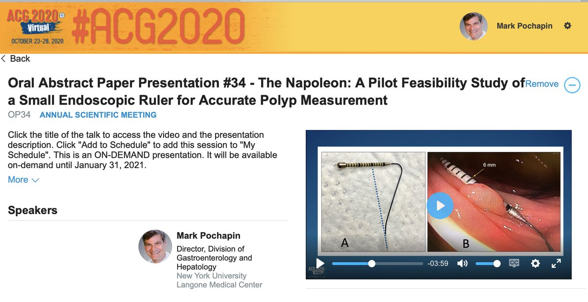 Introducing the #Napoleon, a small endoscopic measuring catheter device to more accurately determine #polyp size. Oral abstract now available on demand #ACG2020. Why is is called the Napoleon? It is a small 📏.