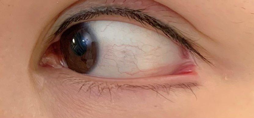 目尻 赤い