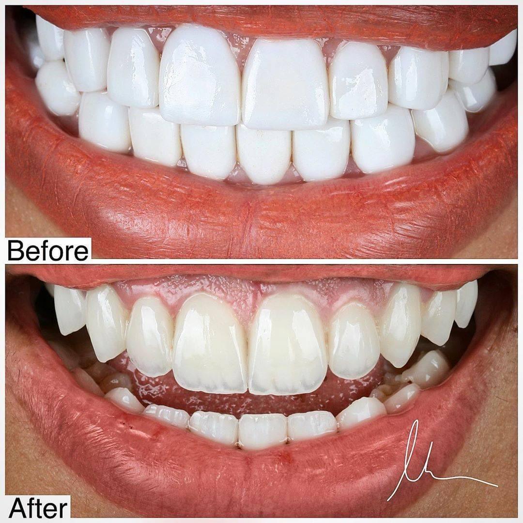 شو رايكم؟ What do you think ?  #clinicoval #dental #odonto #oralhealth #dentalhygienist  #dentalclinic #dentalassistant #cosmeticdentistry #dentalimplants #teethwhitening #orthodontics #dentalstudent #ortodoncia  #implant  #dentalcare #hollywoodsmile #Laugh #Dubai #UAE https://t.co/1r2KMr1YV0