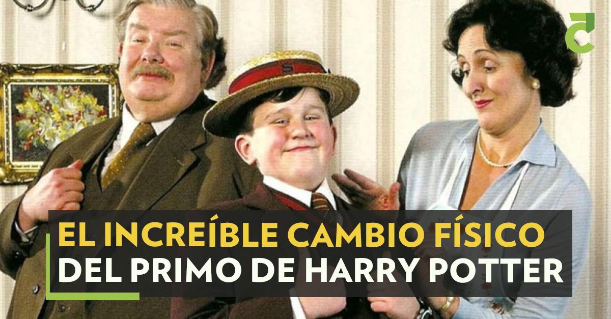 """El actor Harry Melling dejó atrás al fastidioso """"Dudley Dursley"""" y ahora ya no lo reconocen por ese papel. #HarryPotter #Primo #Actor #Películas  https://t.co/LTJggtss0f https://t.co/fp4tHZGorK"""