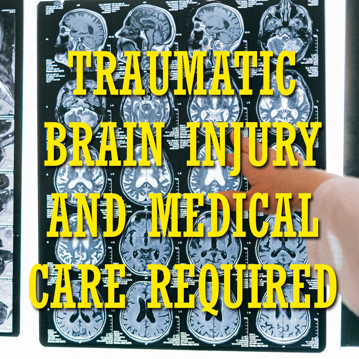 Levels of Traumatic Brain Injury And What Type of Medical Care is Required  https://t.co/DHOT4hVRVo  #personalinjury #lawyer #attorney #injured #law #injurylawyers #injury #caraccident #lawfirm #litigation #attorneyatlaw  #newyork #newyork #newyorkcity #brooklyn #manhattan https://t.co/OLWEWq5J36