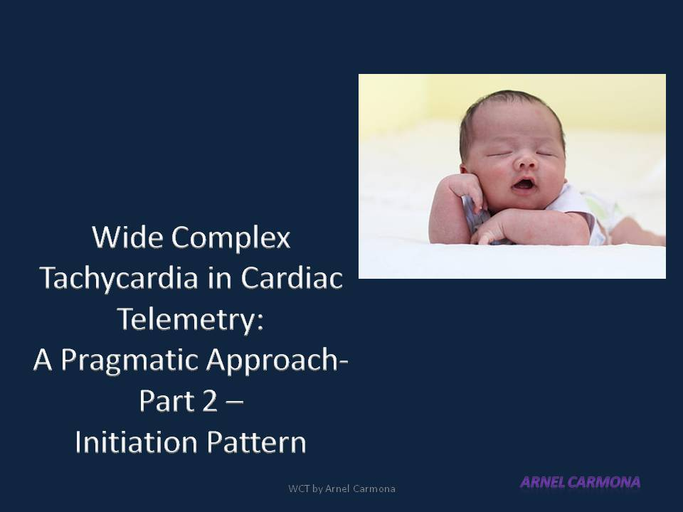Pragmatic slide #tweetorial on Wide Complex Tachycardia (WCT) with emphasis on Cardiac Telemetry.   Part  2 - The initiation Pattern  #FOAMed #Meded #Epeeps #CardioTwitter #MedStudentsTwitter https://t.co/CyFw7YP8f9
