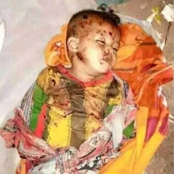 The Amhara s genocides victims include were several small children were beheaded by Oromo nationalist & Abiy security forces.  How can the Amharas beheaded in Metekel zone said #ItIsMyDam? https://t.co/kNPgdpq2Jv https://t.co/d83RchPZ0e