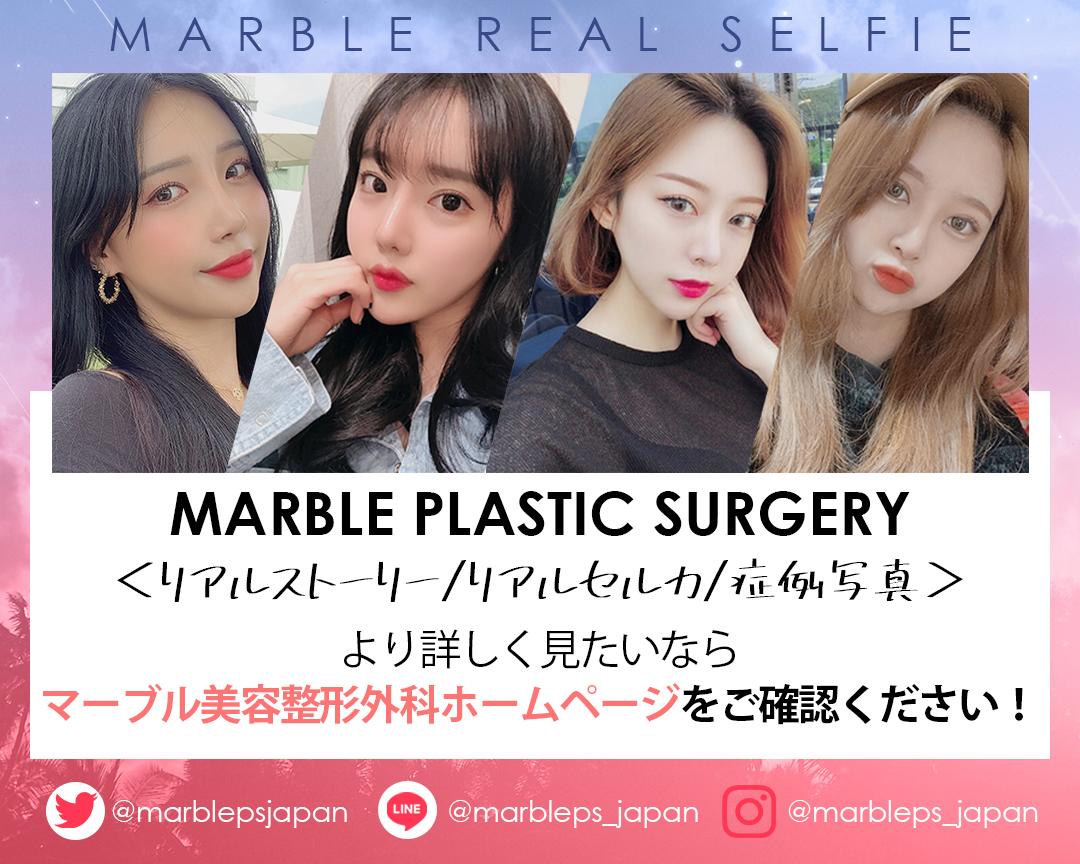#韓国整形 #韓国美容 #美容クリニック #渡韓    お写真によるオンラインカウンセリング受付中💓ご希望の方はこちらまで☞目・鼻・豊胸・輪郭・脂肪吸引等々、マーブル美容整形外科の症例写真が気になるなら、ホームページをご確認ください💨