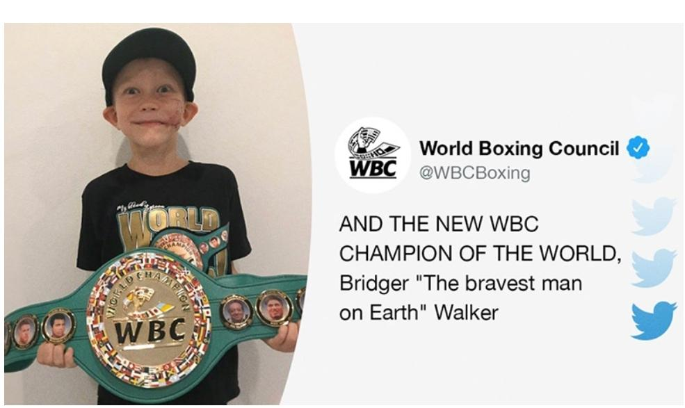 """6 year old Bridger Walker who saved his younger sister from a dog attack last week, received a belt from the WBC and was awarded """"Honorary"""" Champion for his heroic act. He got 90 stitches! Incredible act of bravery!  #superhero #wbc https://t.co/u2XNDCTAgU"""