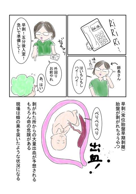 胎盤 早期 位 剥離 常