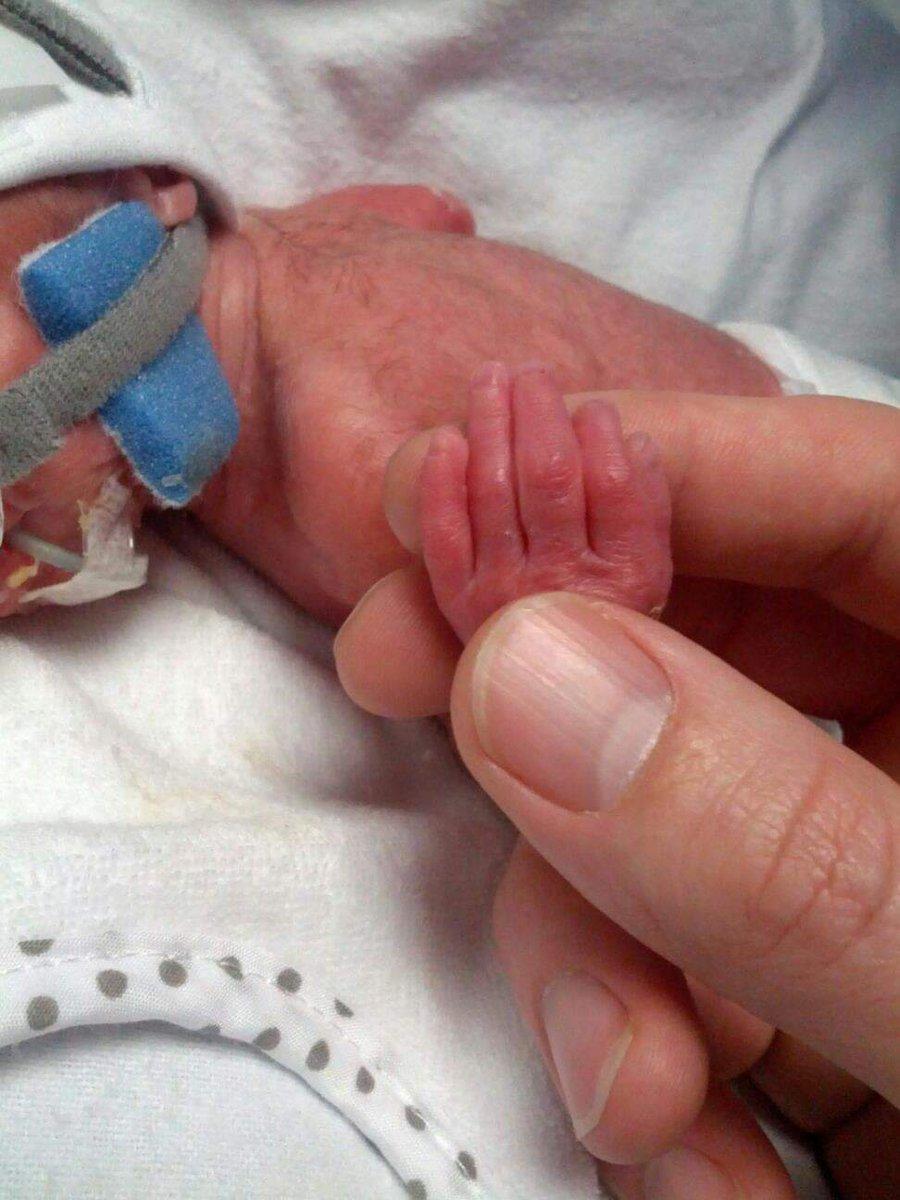 Our NEPTuNE PPI Paul Ryan contributes so much to neonatal preterm research @IrishNeonatal @hrbireland @TCDPaeds #worldprematurityday2020