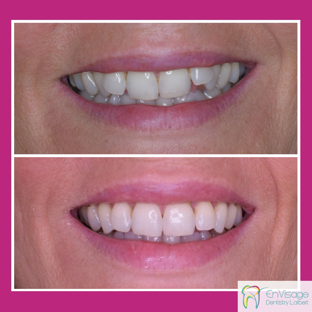 We're starting this week with a #smile transformation and a happy patient! These results were achieved with @Cfastortho fixed #orthodontic treatment which took just six months followed by #teethwhitening 😁 ✨  Reach out for a FREE #cosmetic consultation: 01324 562910 ☎️