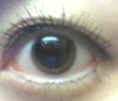 レーシックやる前に瞳孔開く目薬を点されて瞳孔が全開になった時の画像出てきた🥺💦