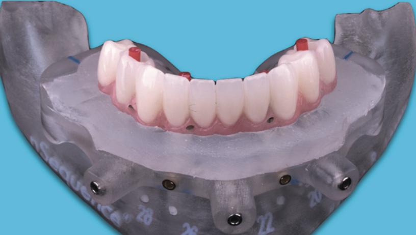 引き続き、インプラントオペ、オールオン4の準備中。うまくいけば抜歯と同時にインプラント、仮歯までセット出来ます。今日はどこまで骨を削合するのか、CT分析。もちろん、仮歯セットまでいかない状況も想定して準備をしています。皆さんこうなる前に、歯を磨いて残しましょうね。