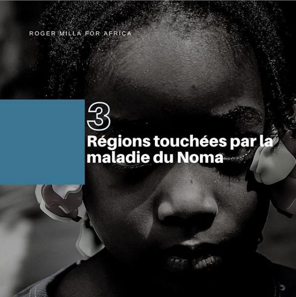 📍Amérique du Sud 📍Asie du Sud-Est 📍Afrique Le Noma touche les populations les plus démunies de la planète. Ensemble, éradiquons cette maladie. Signez la pétition en bio 🖊📄  #association #nonprofitorganization #rogermilla #petition #noma #nomadisease #africa #together