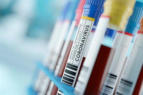 За добу в Україні – 12 978 нових випадків COVID-19 https://t.co/gwfrsZybId  12 978 нових випадків коронавірусної хвороби COVID-19 зафіксовано в Україні станом на 29 листопада 2020 року. Зокрема, захворіли 599 дітей та 408 медпрацівників.  Також за минулу добу:   госпіталізован... https://t.co/rn9Eqy9mSc