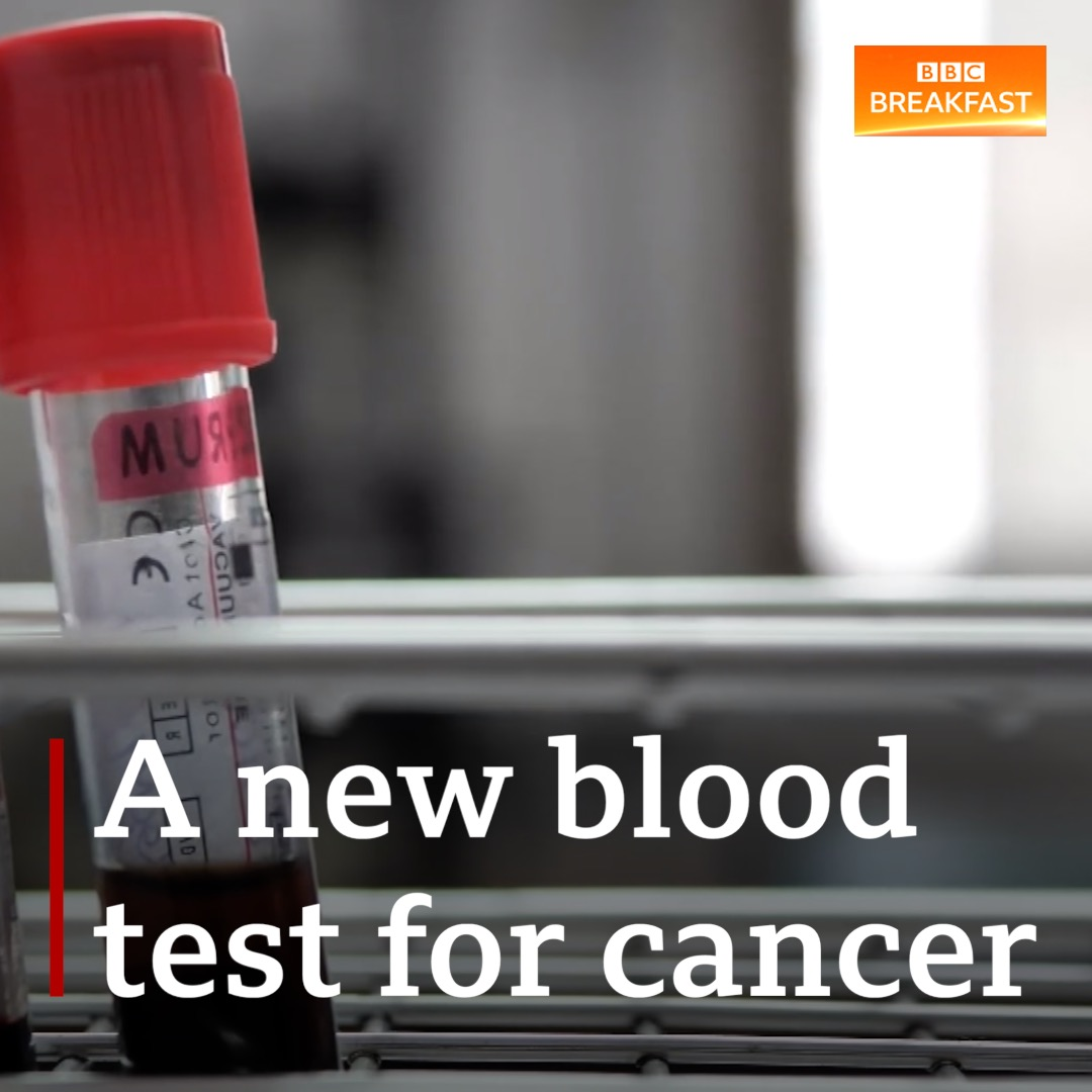 A blood test could soon be used to detect cancer.  The NHS is planning to pilot the test to find out if it can detect more than 50 types of cancer at an early stage.