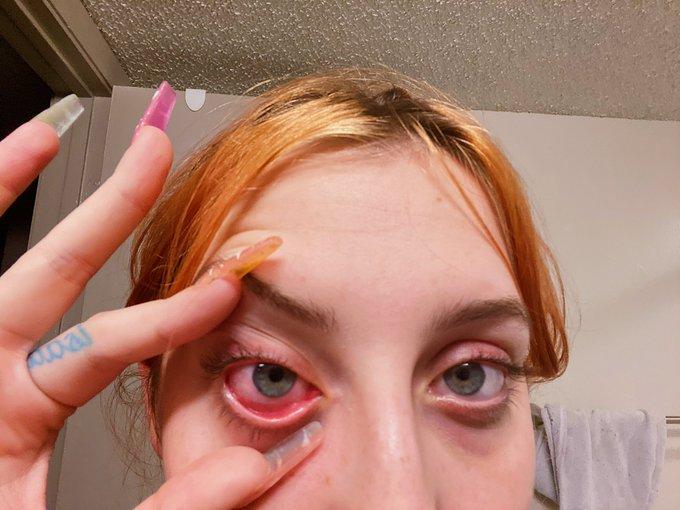 i got cum in my eye & now it's blurry and i can't stop thinking ab little sperm swimming around in my